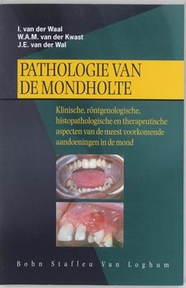 Afbeeldingen van Pathologie van de mondholte