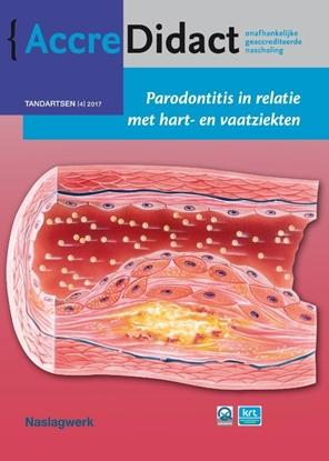 Afbeeldingen van AccreDidact Parodontitis in relatie met hart- en vaatziekten