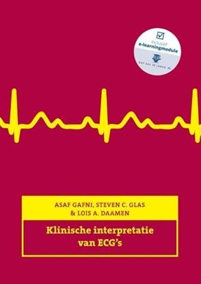 Afbeeldingen van Klinische interpretatie van ECG's
