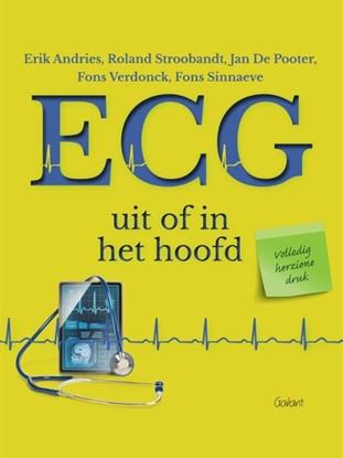Afbeeldingen van ECG