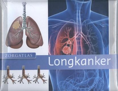 Afbeeldingen van Zorgatlas Longkanker