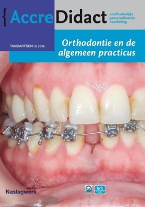 Afbeeldingen van AccreDidact Orthodontie en de algemeen practicus