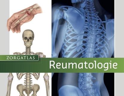 Afbeeldingen van Reumatologie