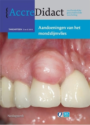 Afbeeldingen van AccreDidact Aandoeningen van het mondslijmvlies