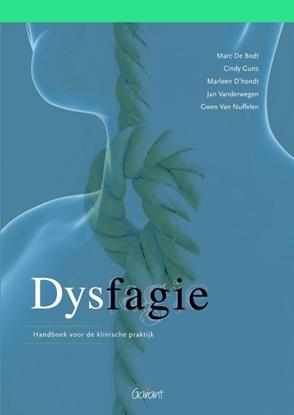 Afbeeldingen van Dysfagie