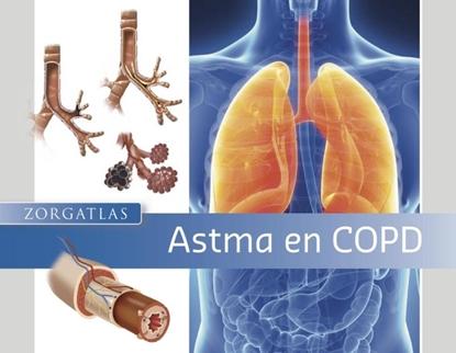 Afbeeldingen van Zorgatlas Astma en COPD