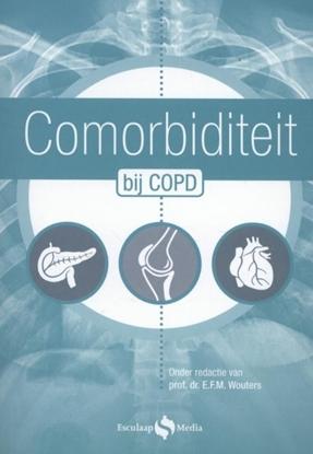 Afbeeldingen van Comorbiditeit bij COPD