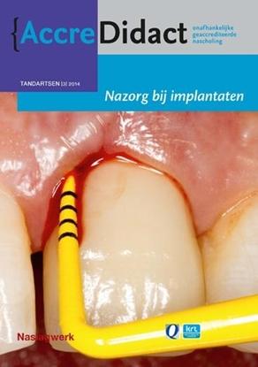 Afbeeldingen van AccreDidact Nazorg bij implantaten