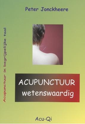 Afbeeldingen van Acupunctuur wetenswaardig