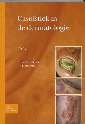 Afbeeldingen van Casuïstiek in de dermatologie deel 1