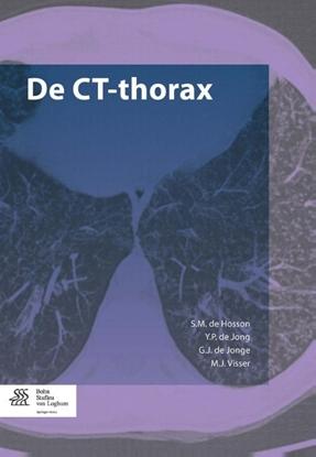 Afbeeldingen van De CT-thorax