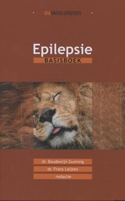 Afbeeldingen van Epilepsie