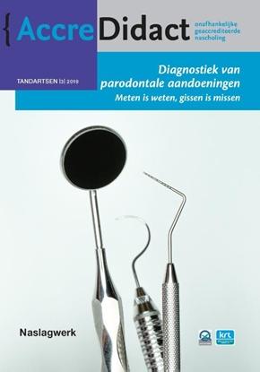 Afbeeldingen van AccreDidact Diagnostiek van parodontale aandoeningen