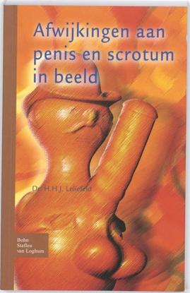 Afbeeldingen van Afwijkingen aan penis en scrotum in beeld