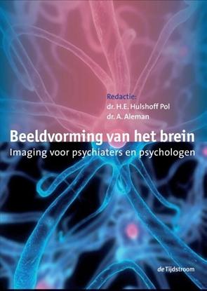 Afbeeldingen van Beeldvorming van het brein