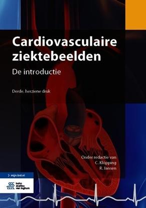 Afbeeldingen van Cardiovasculaire ziektebeelden