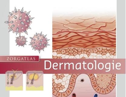 Afbeeldingen van Zorgatlas Dermatologie
